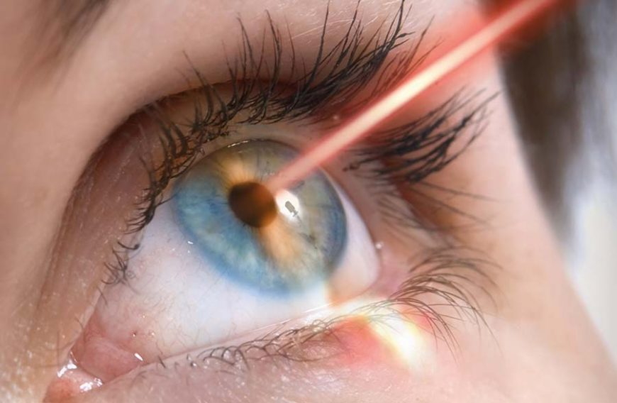 Laser occhi