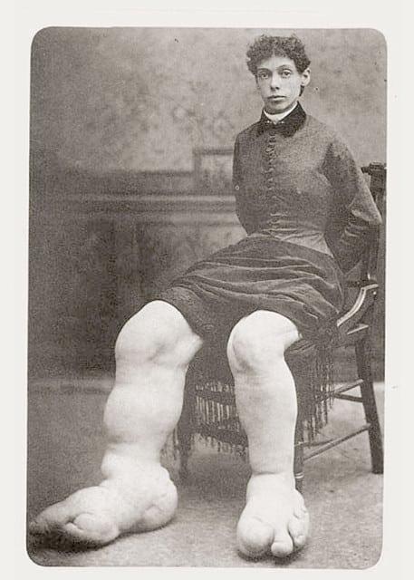 Fanny Mills