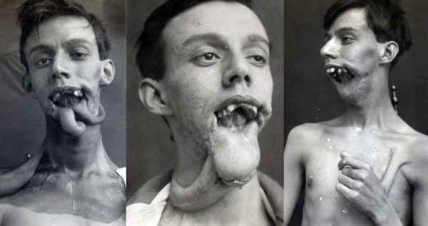 esperimento di chirurgia plastica nazista